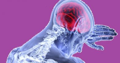 What Causes Brain Stroke & How to Prevent It?